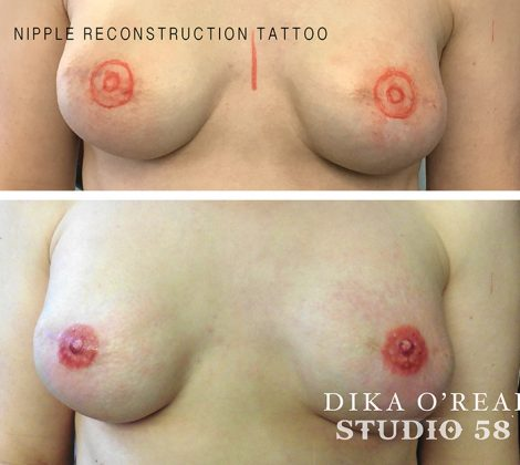 Before Nipple Tattoo1